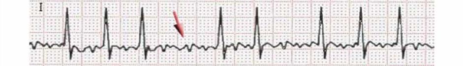 Medical PBL: Cardiac Jack